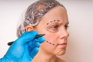 iStock 618982226 300x200 - Quick Surgery, for Big Impact – A Brow Lift
