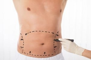 The No Drain Tummy Tuck—Why It's Different and Better