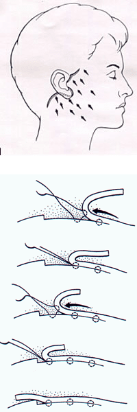 PTS illustration - PROGRESSIVE TENSION SUTURES (PTS)