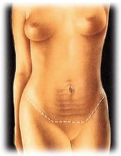 tummy 1 - ABDOMINOPLASTY - TUMMY TUCK