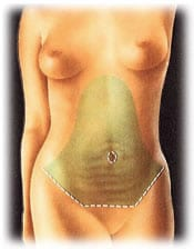 tummy 2 - ABDOMINOPLASTY - TUMMY TUCK