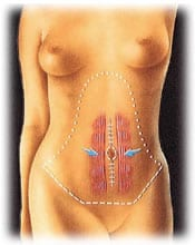 tummy 3 - ABDOMINOPLASTY - TUMMY TUCK