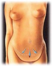 tummy 4 - ABDOMINOPLASTY - TUMMY TUCK