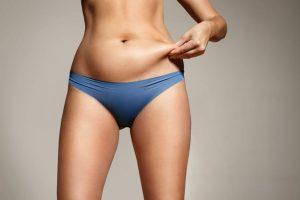 Mini Tummy Tuck vs. Full Tummy Tuck
